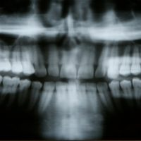 iStock 000001553803XSmall 200x200 After Impacted Tooth