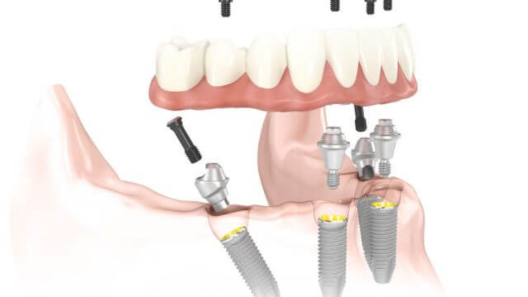 Noble Biocare Dental Implants