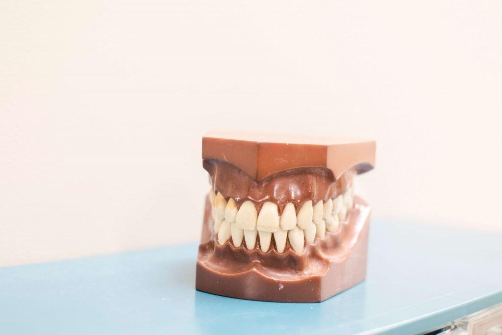 Crooked Teeth Fix