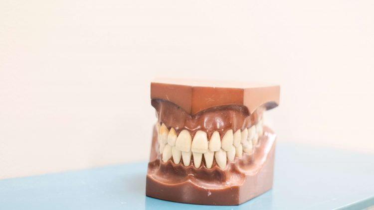 Can Crowns Fix Crooked Teeth?