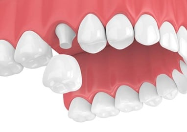 Dental Crowns: Same-Day Crowns