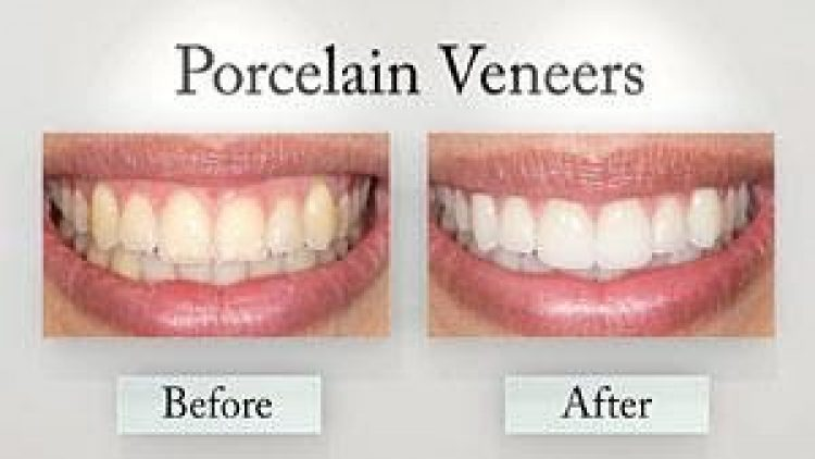 Cosmetic Dentistry Treatment Options for a Sparkling Smile